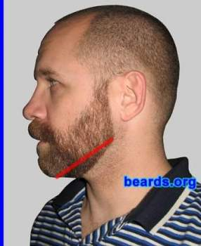 Laser Hair Removal for Beard Line - Laser Skin Care